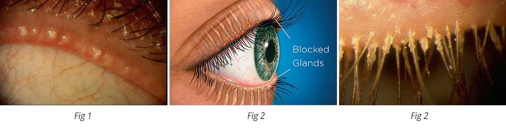 Dry Eye Graphic