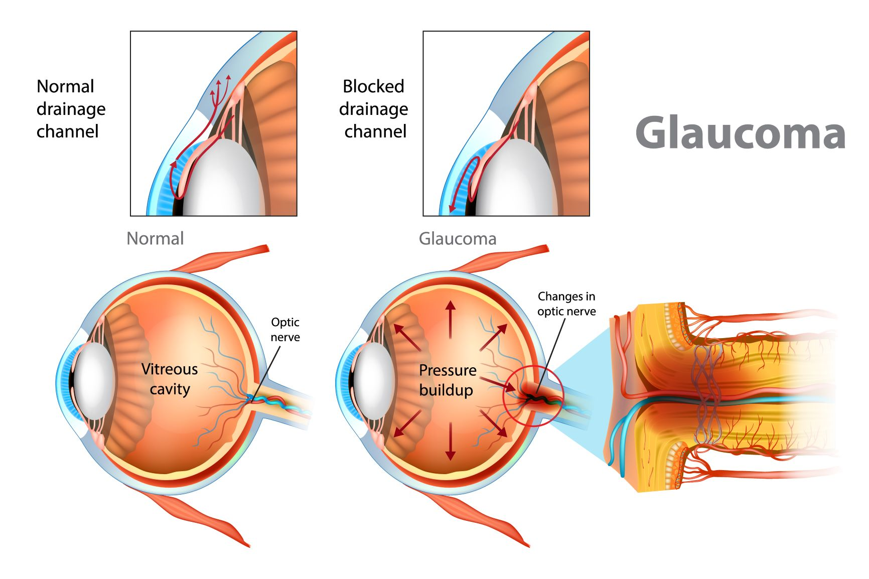 Information about Glaucoma